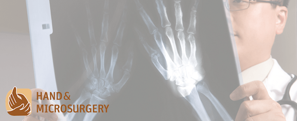 Bedah Tangan dan Mikro di Rumah Sakit Sunway